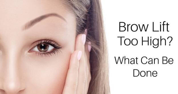 Botox Toronto-My Brow Lift is Too High