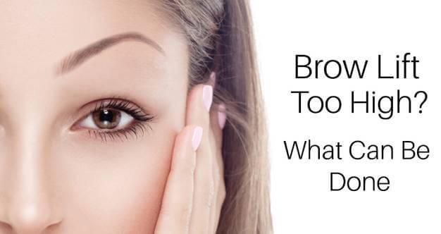 Botox Toronto-My Brow Lift is Too High