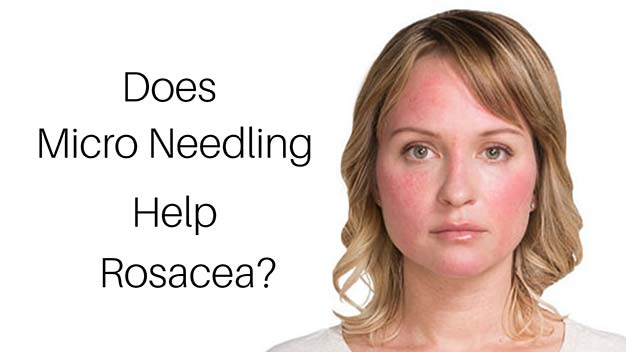 Does Micro needling Help Rosacea