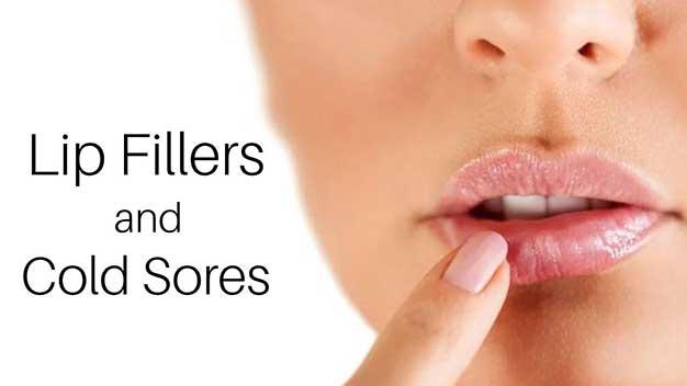 Lip Fillers Toronto Cold Sores