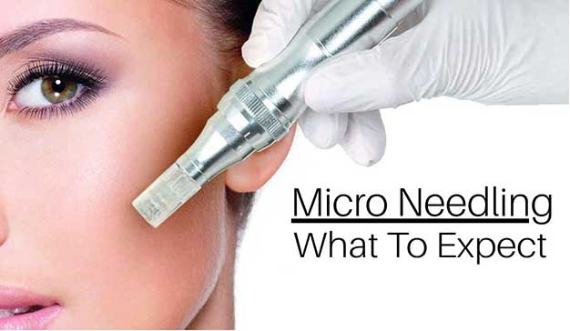 Microneedling Toronto What To Expect