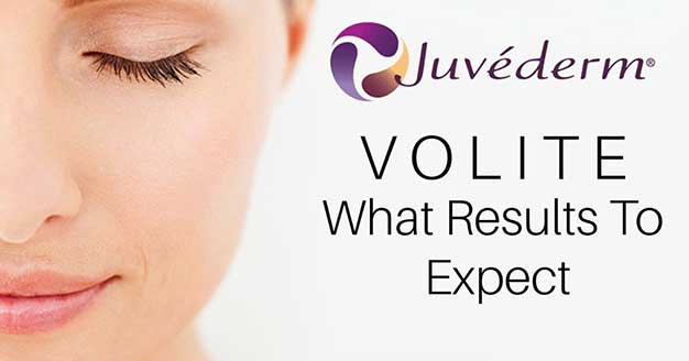 Volite Toronto What Results To Expect