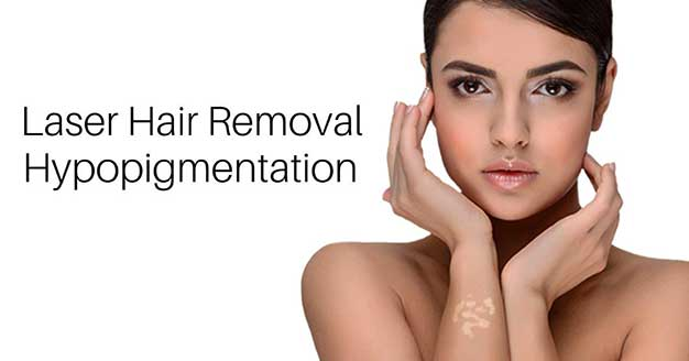 Laser Hair Removal Toronto Can I Get Hypopigmentation