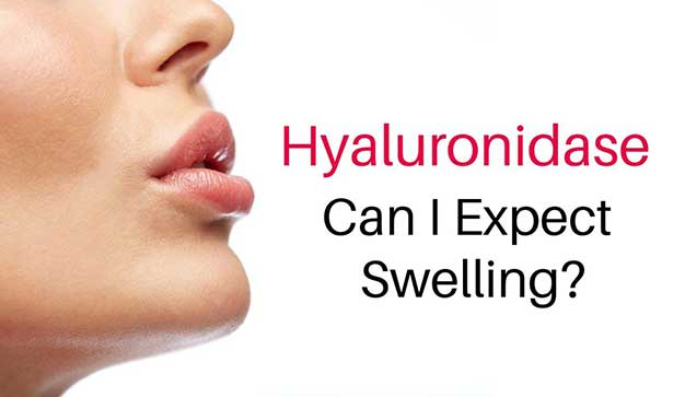 Hayluronidase Toronto and Swelling