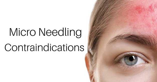 Micro Needling Toronto Contraindications